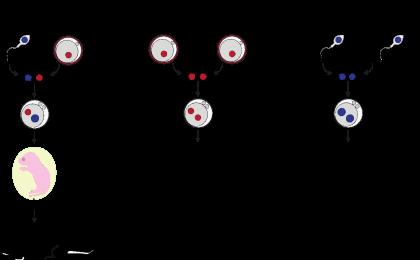 PSL-Explore-Focus-Transplantation