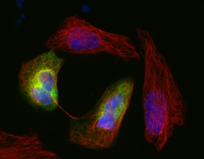 Visualisation microscopique du cytosquelette par fluorescence