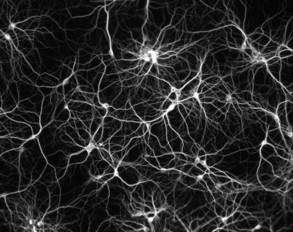 Réseau de neurones humains